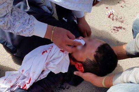 إصابات مختلفة في ازدحام بشبابيك بيع تذاكر مباراة الرجاء وخريبكة